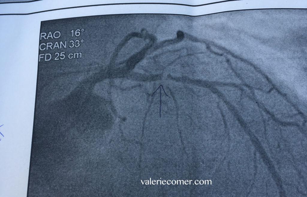 heart attack, angiogram